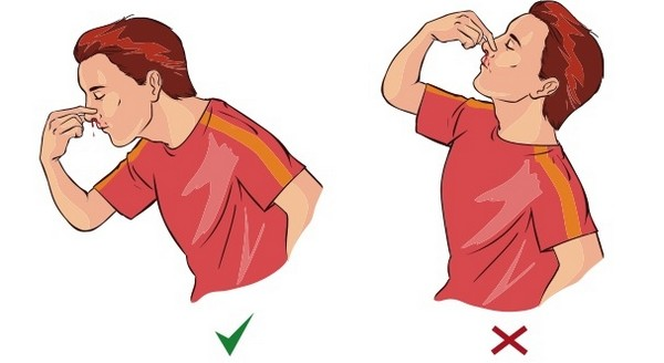 krvácanie z nosa - správny postup