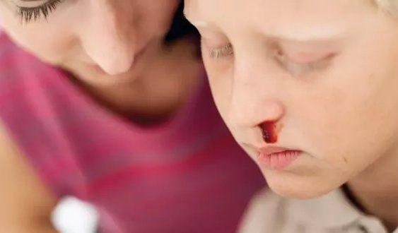 krvácanie z nosa