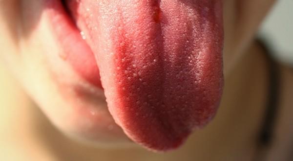 popálený jazyk