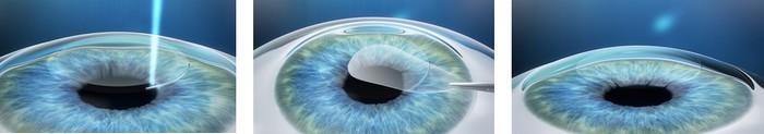 relex smile ak zvažujete laserovú operáciu očí