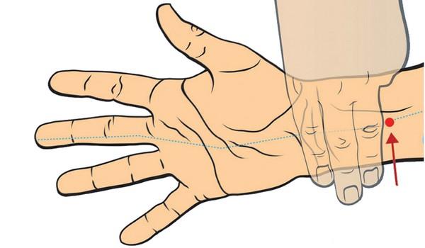 akupunktúrny bod P6