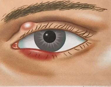 vlčie zrno a jačmeň na oku