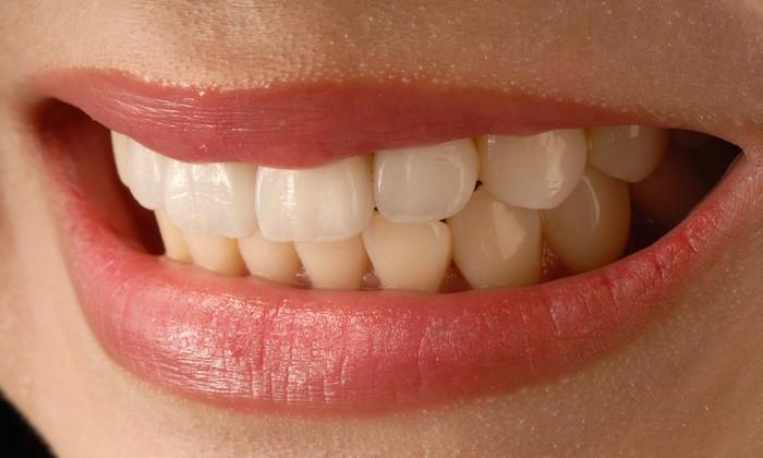úsmev zuby a minerálne látky