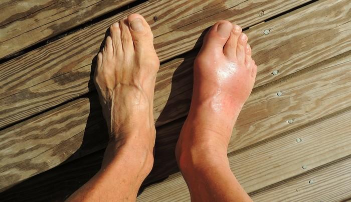 ako na opuchnuté nohy