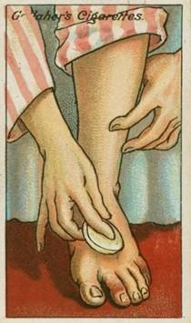 omrzliny na nohe