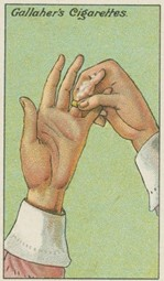 prsteň nejde z prsta