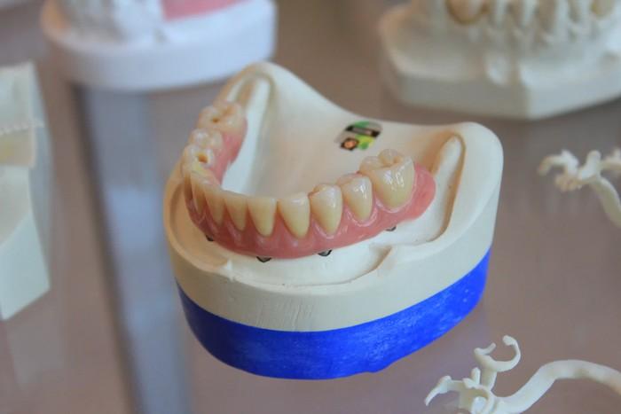 chrup a zubné implantáty