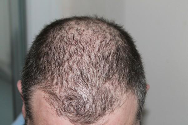 zdravotné problémy seniorov vypadávanie vlasov