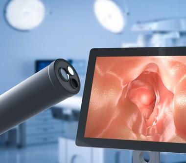 endoskopia mýty a fakty